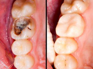 Conservativa Endodonzia:: Prima e dopo la cura endodonzica