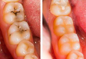 Conservativa endodonzia: prima e dopo il trattamento dentale