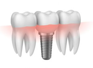 Implantologia: protesi dentale a innesto