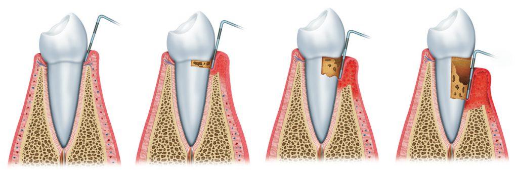 Parodontologia: sequenza di parodontite