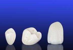 Protesi fissa: esempi di corone dentali in ceramica prive di metallo